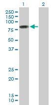 Western blot - PIAS2 antibody (ab88598)