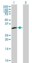 Western blot - TFIIS antibody (ab88599)