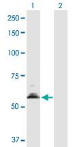 Western blot - PDHX antibody (ab88601)