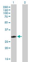 Western blot - glutathione S transferase Omega 1 antibody (ab88604)