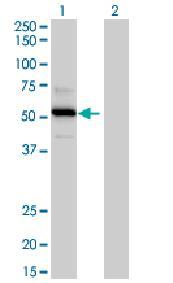 Western blot - TRAF4 antibody (ab88612)