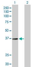 Western blot - RALY antibody (ab88616)