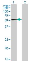 Western blot - ZNF35 antibody (ab88620)