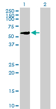 Western blot - ZNF83 antibody (ab88621)