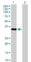 Western blot - NUBP1 antibody (ab88622)