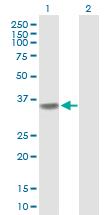 Western blot - POLR3F antibody (ab88624)
