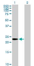Western blot - C1orf83 antibody (ab88625)