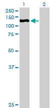 Western blot - ZHX3 antibody (ab88627)