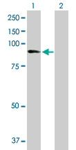 Western blot - ZNF624 antibody (ab88628)