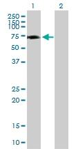 Western blot - GRHL2 antibody (ab88631)