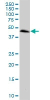 Western blot - CCRL2 antibody (ab88632)
