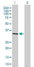 Western blot - TRAP alpha antibody (ab88644)