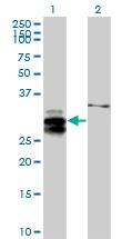 Western blot - ULBP2 antibody (ab88645)