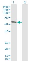 Western blot - AMY1B antibody (ab88646)