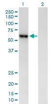 Western blot - AMY2B antibody (ab88648)