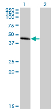 Western blot - Chemokine Receptor D6 antibody (ab88651)