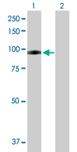 Western blot - Plasminogen antibody (ab88654)