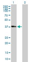 Western blot - ADH1B antibody (ab88655)