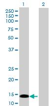 Western blot - PRKRIR antibody (ab88656)