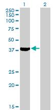 Western blot - Septin 2 antibody (ab88657)