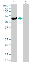 Western blot - Ribophorin II antibody (ab88663)