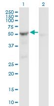 Western blot - SHMT2 antibody (ab88664)