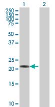 Western blot - Proteasome 20S beta 3 antibody (ab88665)