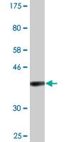 Western blot - Acyl-coenzyme A Thioesterase 8 antibody (ab88666)