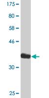 Western blot - EDIL3 antibody (ab88667)