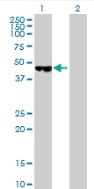 Western blot - PCYT2 antibody (ab88668)