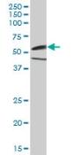 Western blot - CamKII gamma antibody (ab88670)