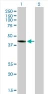 Western blot - PELO antibody (ab88673)