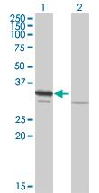 Western blot - RPA32/RPA2 antibody (ab88675)
