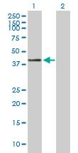 Western blot - Cathepsin H antibody (ab88683)