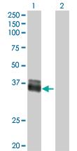 Western blot - EpCAM antibody (ab88684)