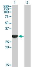 Western blot - ORC6L antibody (ab88686)