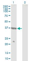 Western blot - NPR2L antibody (ab88691)