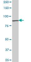 Western blot - RASGRP3 antibody (ab88697)