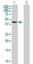 Western blot - PTK9 antibody (ab88698)