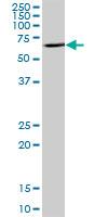 Western blot - ENTPD8 antibody (ab88699)