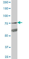 Western blot - GPR56 antibody (ab88700)