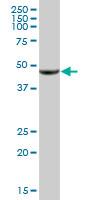Western blot - 5-oxo-ETE GPCR antibody (ab88701)