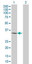 Western blot - GPCR SALPR antibody (ab88702)
