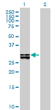 Western blot - DHRS4 antibody (ab88703)