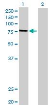 Western blot - GSTCD antibody (ab88704)