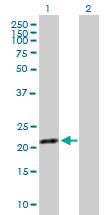 Western blot - SYT16 antibody (ab88705)