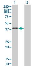 Western blot - ZNF783 antibody (ab88709)