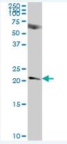 Western blot - NICN1 antibody (ab88710)