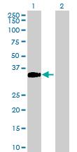 Western blot - CCDC148 antibody (ab88712)