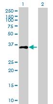 Western blot - C10orf46 antibody (ab88717)